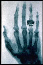An X-ray picture (radiograph) taken by