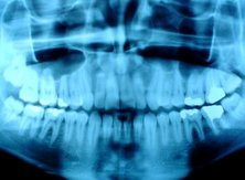 X-rays can reveal the details of bones and teeth